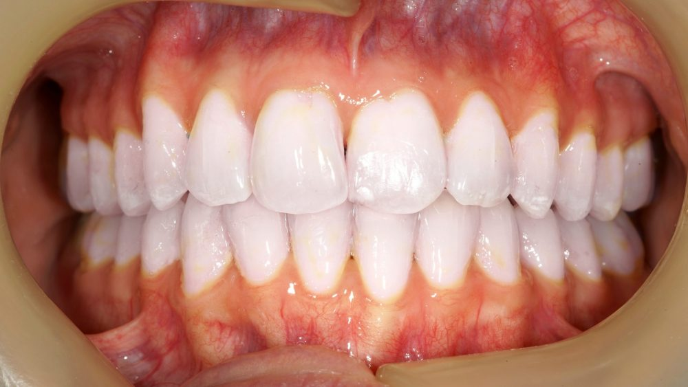 Orthodontics Before & After