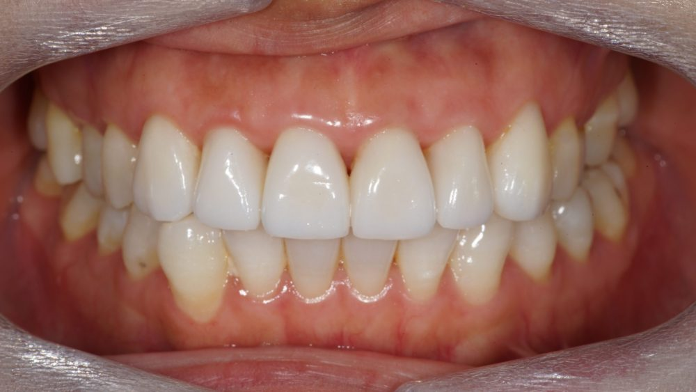 Dental Crown Before & After