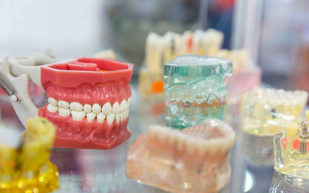 The Difference Between Getting Implants vs Dentures