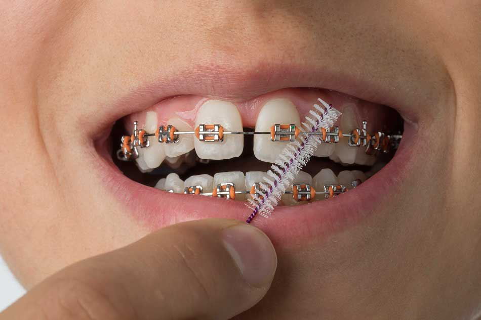 How To Look After Your Teeth After Getting Braces & Looking After Your Braces