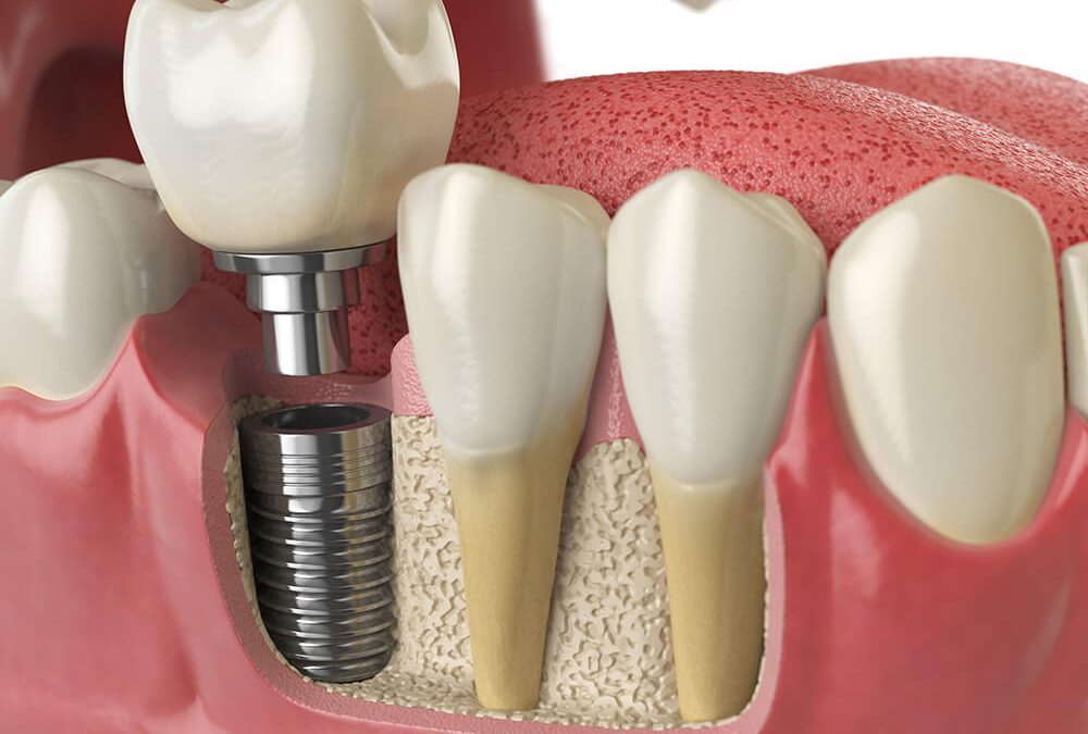 Dental Implant: How it Works & What to Expect