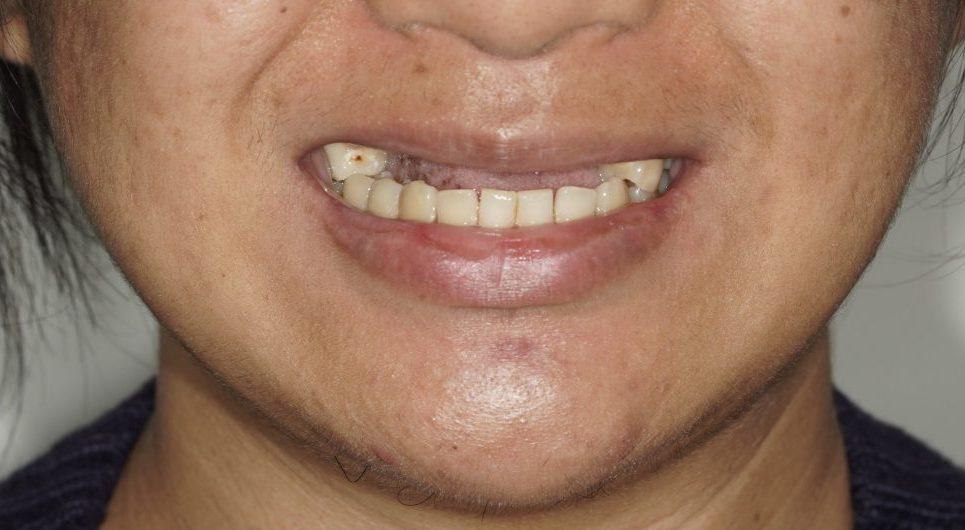 Dental Crown Before & After